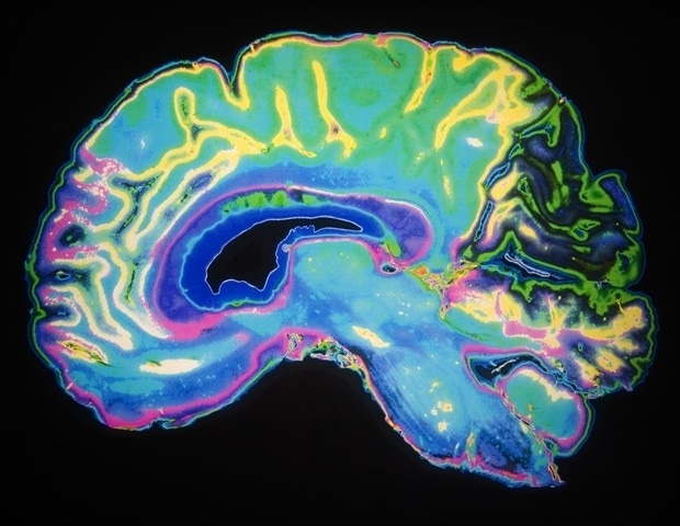 Super-resolution imaging technique could enable early detection of neurological disorders