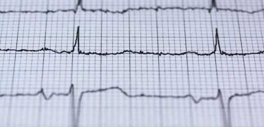 Athletes may have more than twice the risk of irregular heart rhythm