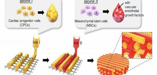 Bioprinted 3D cardiac patches could reverse scar formation, promote myocardial regeneration after heart attacks