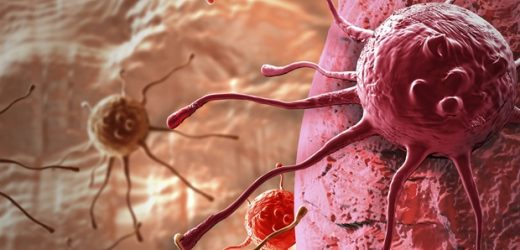 Genomic test may help identify prostate cancer patients at high risk of disease progression