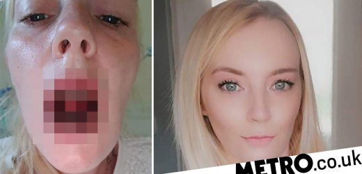 Woman covered in burn-like sores across the body after developing rare condition