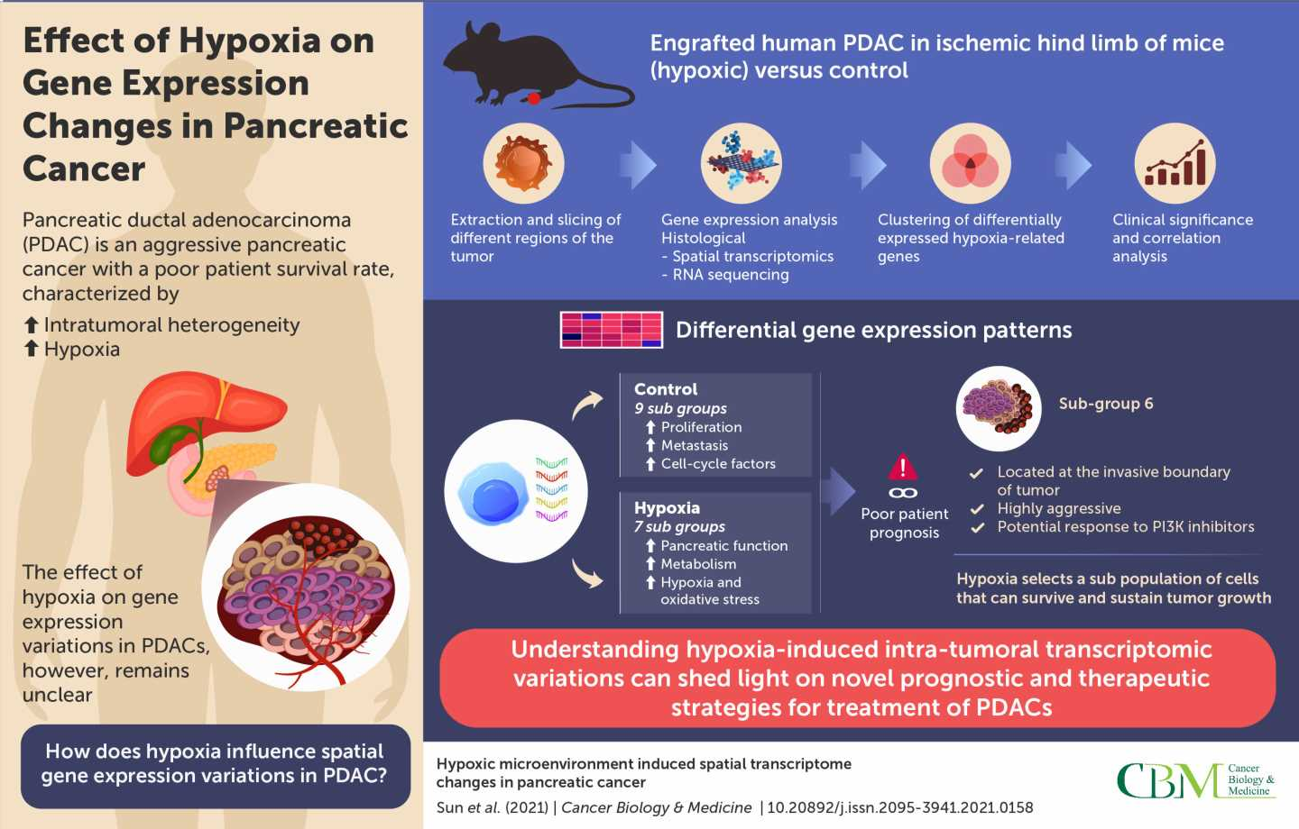How hypoxia influences spatial gene expression variations in pancreatic cancer