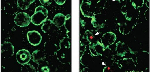 Red blood cell alterations contribute to lupus