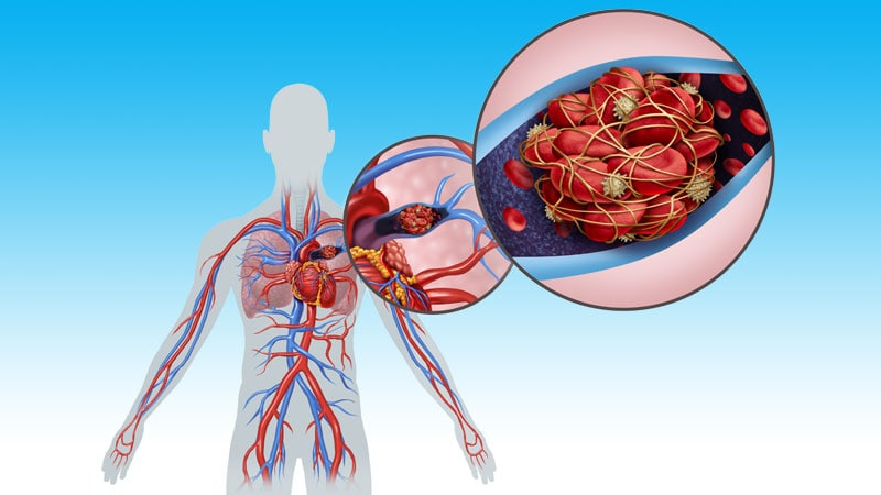 Study Describes Bleeding Risk With Anticoagulants for VTE