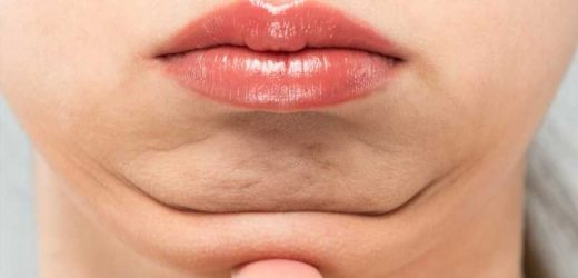 What Really Causes A Double Chin?