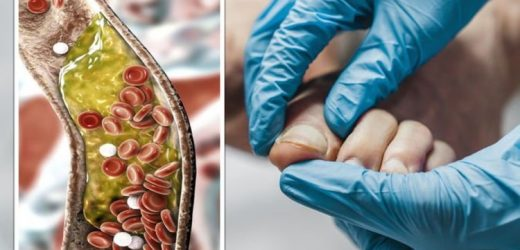 High cholesterol: The sign in your nails warning that levels are dangerously high