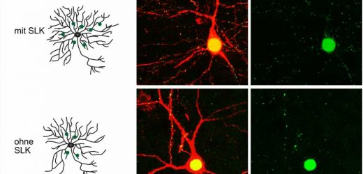 Pruning the dendritic tree for a better understanding of epileptic seizures
